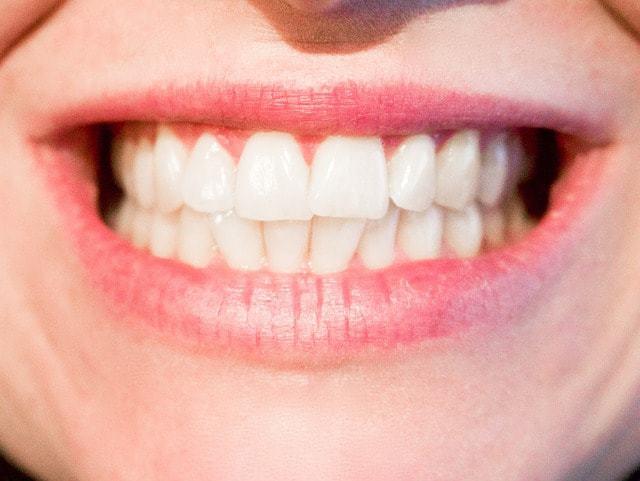 מרפאות שיניים טובות בקריית אונו וגבעת שמואל (צילום: pixabay)