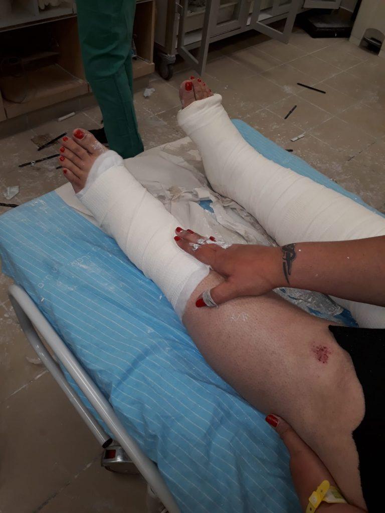 הפצעים ברגלה