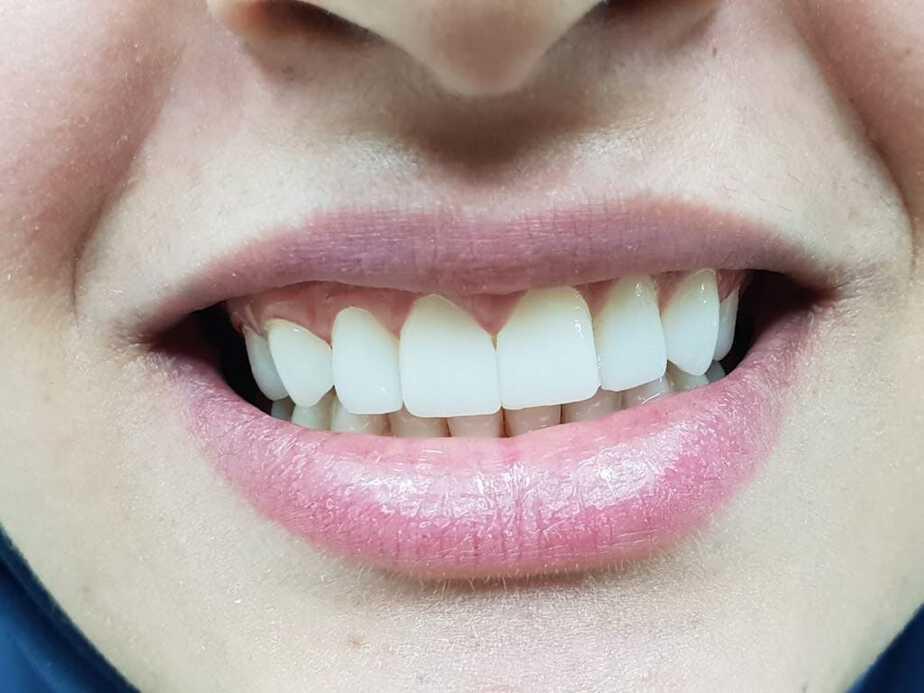 רופא שיניים בפתח תקווה