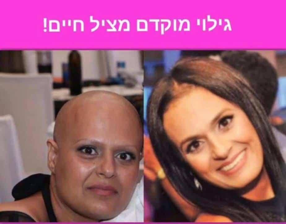 לפני ואחרי (צילום באדיבות שרית צאיג)